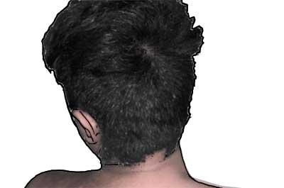 Läuse Behandlung: Kopfläuse